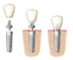 An illustration of dental implants in three stages with the crown being placed on