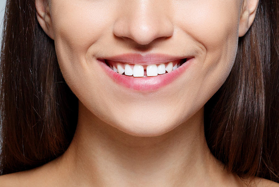 A woman smiling with gapped front teeth.
