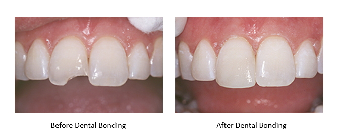 before and after pictures of dental bonding done on a chipped tooth