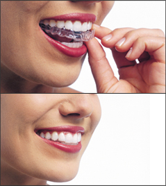 Two images: 1. A woman putting on her Invisalign aligners. S. After her aligners are on