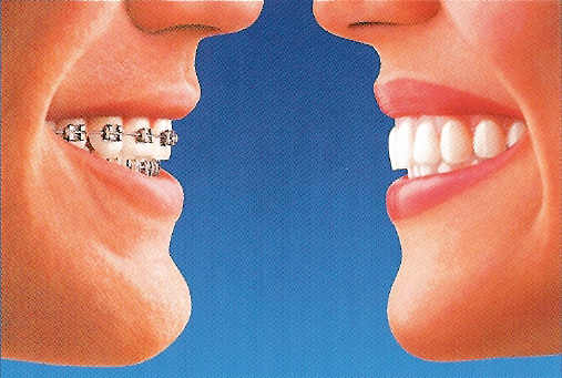 Left: a smile with braces. Right: a smile with Invisalign