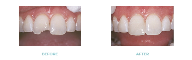 before and after dental bonding on a chipped tooth