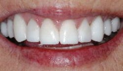 porcelain-crowns-after